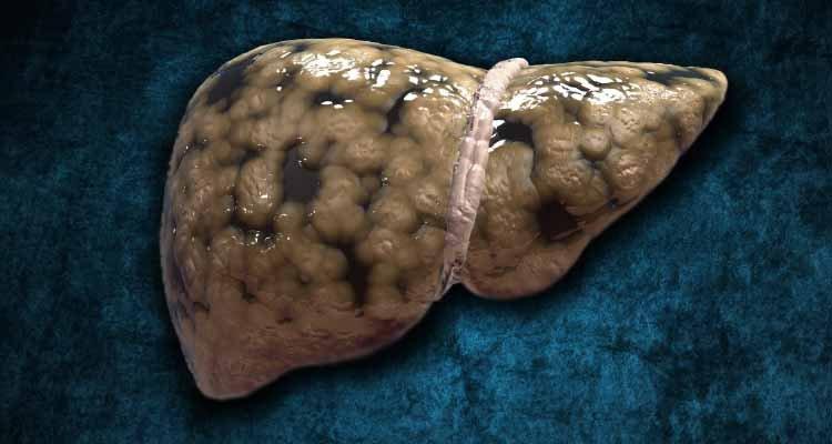 carboidratos, açúcar, refinados, refrigerante, jejum, gordura no fígado, esteatose hepática